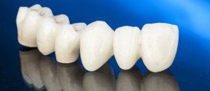 Dental Crowns at Premier Dental Care in Idaho Falls ID