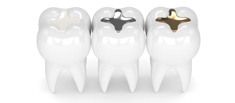 Onlays and Inlays at Premier Dental Care in Idaho Falls ID